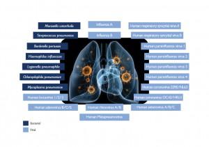 Randox Biosciences Respiratory Multiplex Array II Image